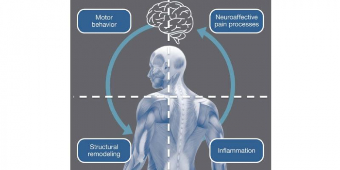 """Graphic image of a human body in gray tones with an outline of a brain above the head and arrows indicating a circle from the brain to the body to the brain, with four text boxes in each corner, text reading: """"Motor behavior, Neuroaffective pain processes, Structural remodeling, Inflammation"""""""